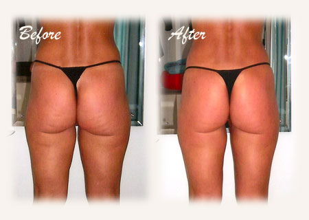 before_after-body-wrap